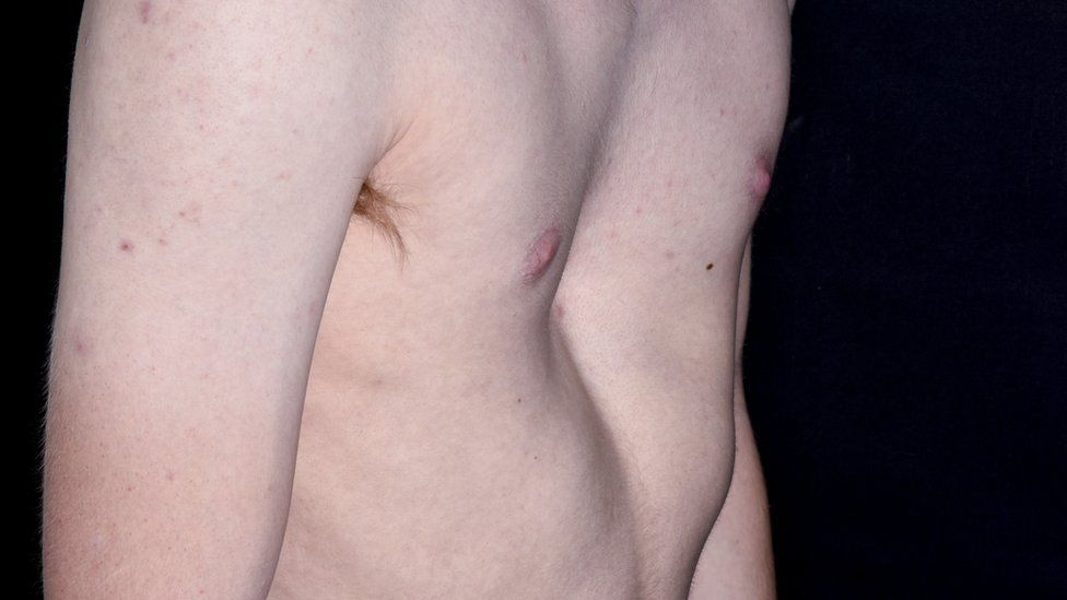 The chest of a 19-year-old male patient