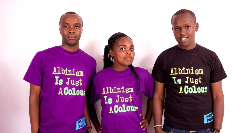 Albinism Is Just A Colour campaigners