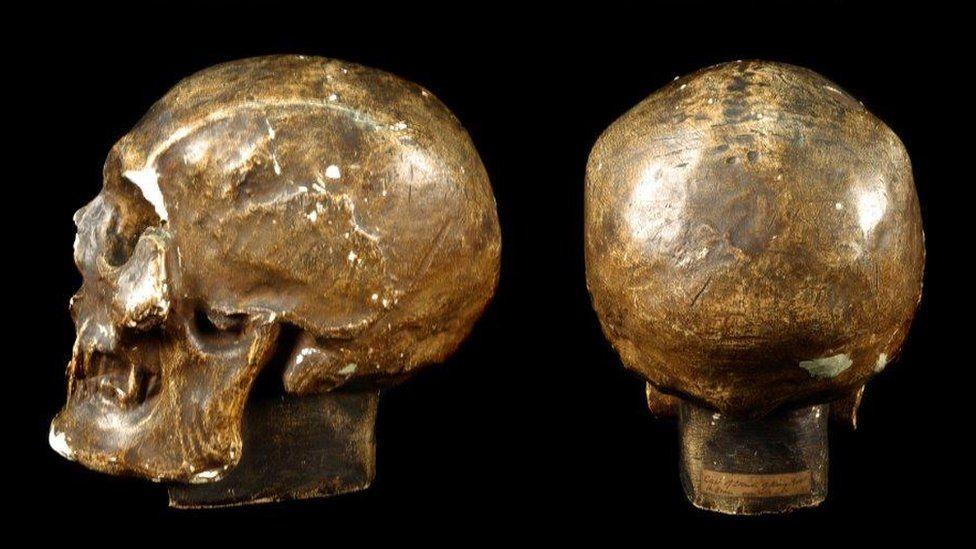 Robert Bruce skull