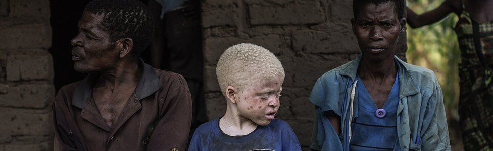 An albino child in Malawi sits between his parents