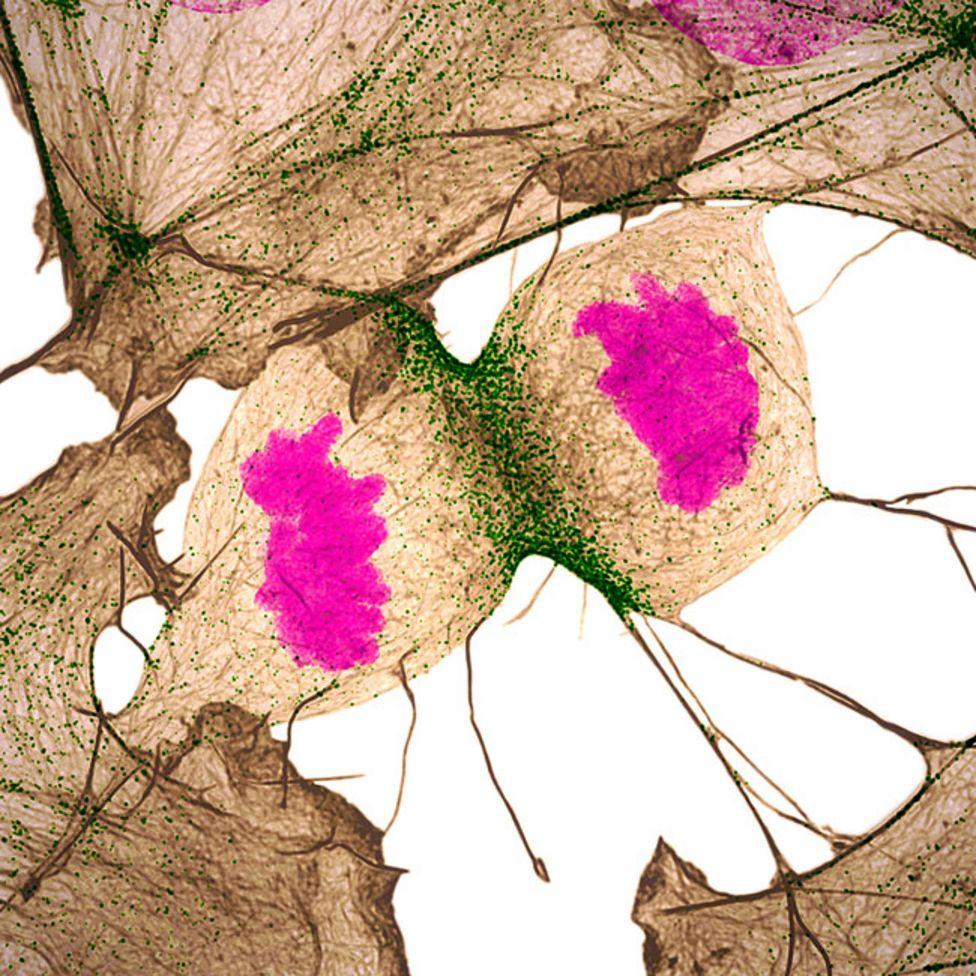Un fibroblasto, una célula del tejido conectivo, durante el proceso de división celular