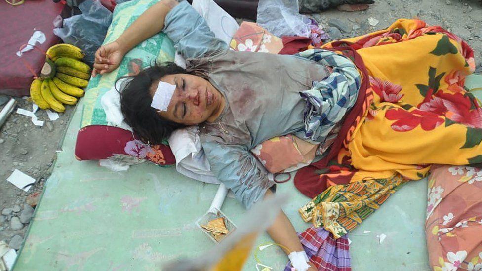傷勢嚴重的婦女在醫院休息