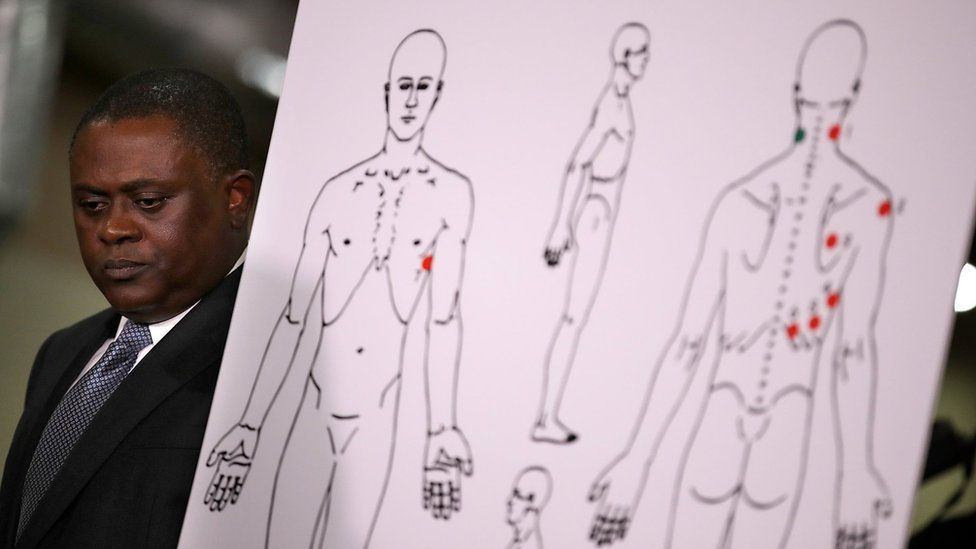 Dr. Bennet Omalu stands by a diagram showing the results of his autopsy of Stephon Clark