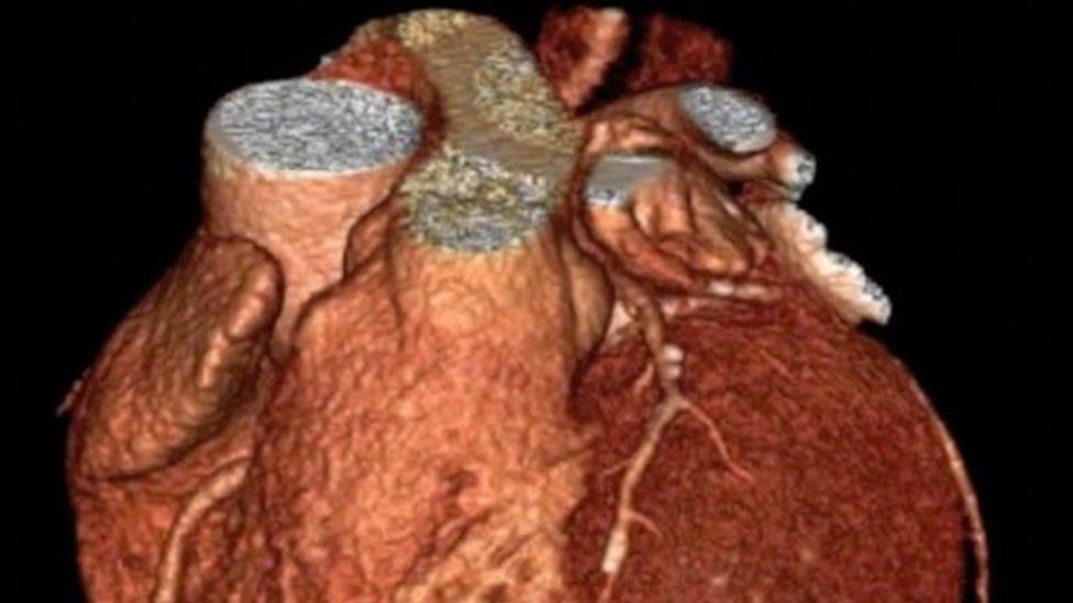 O gene perdido que faz com que humanos sejam 'única espécie' com ataques cardíacos