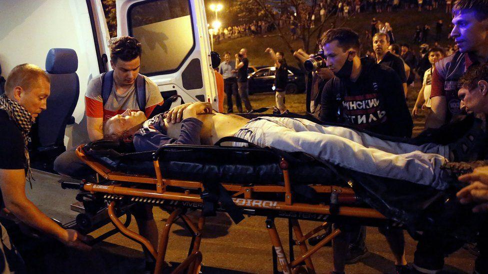 Раненный протестующий