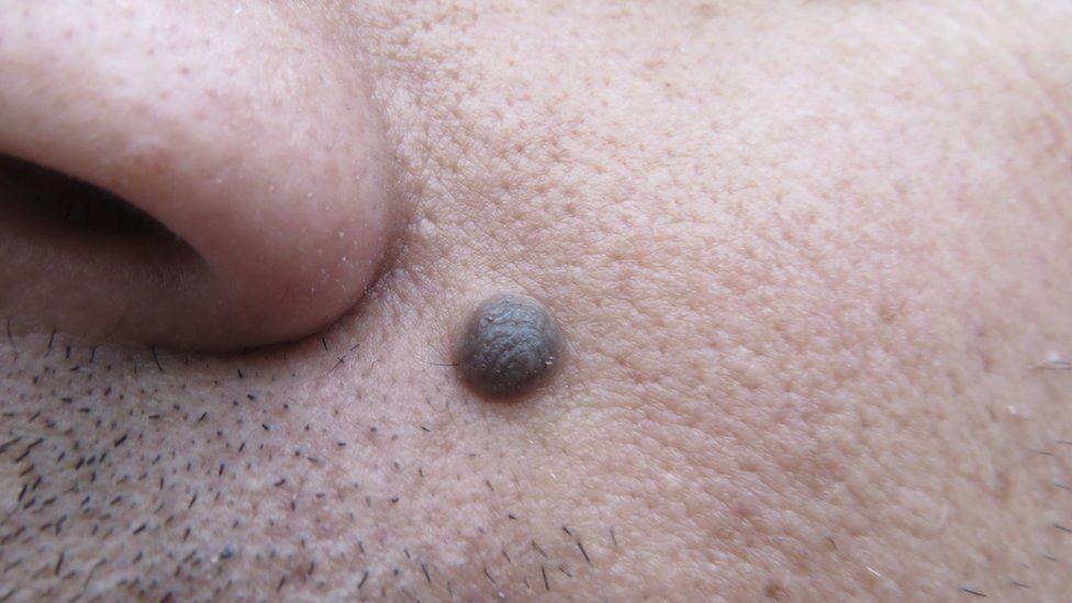 Mole on man's face
