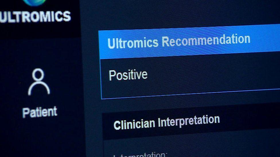Ultronics system