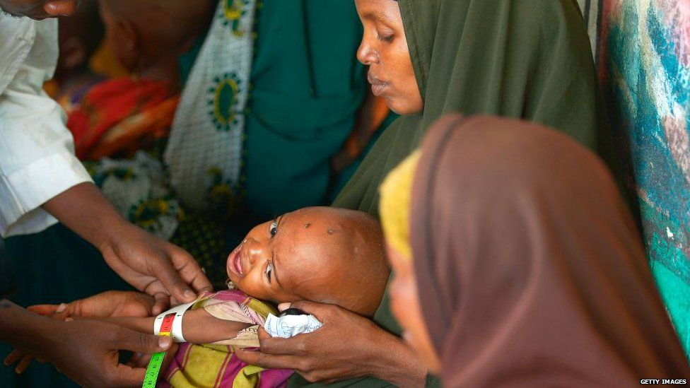 A malnourished child being processed by an aid worker in Somalia
