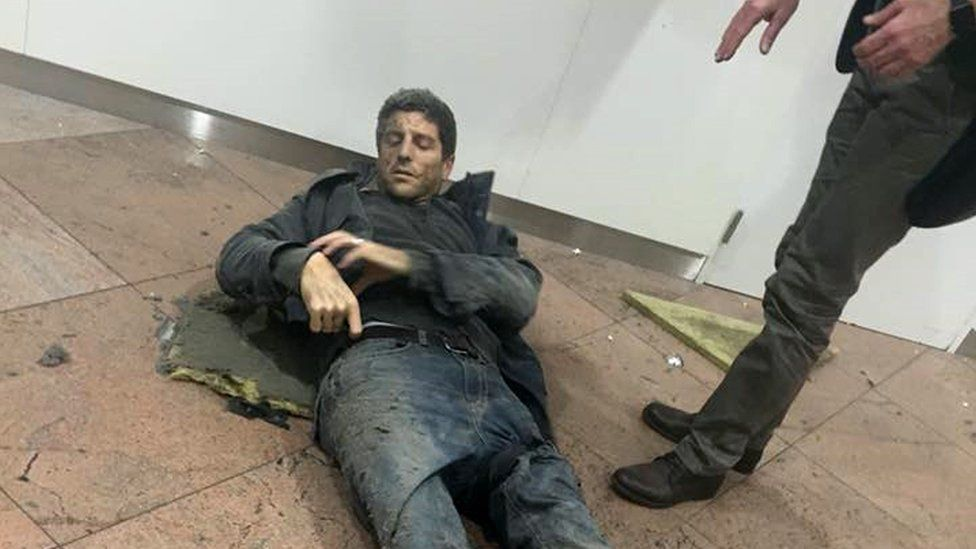 In this photo provided by Georgian Public Broadcaster and photographed by Ketevan Kardava a man is wounded in Brussels Airport in Brussels, Belgium, after explosions were heard Tuesday, March 22, 2016.