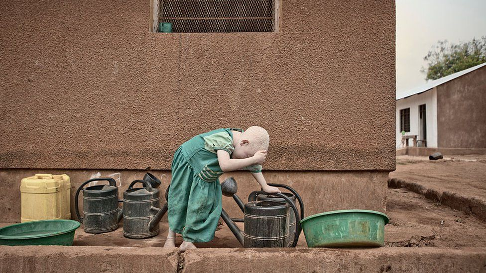A young girl living with albinism pictured in 2012 in Tanzania.