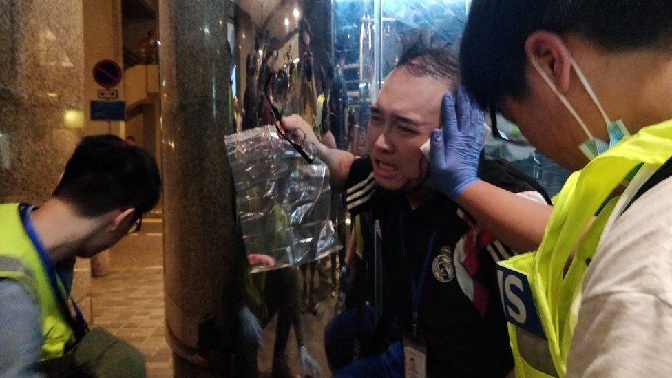 Andrew Chiu Ka Yin, District Councillor of Taikoo Shing West, receives help from first aid volunteers after sustaining an injury in a knife attack at a shopping mall, in Taikoo Shing in Hong Kong, China November 3, 2019.