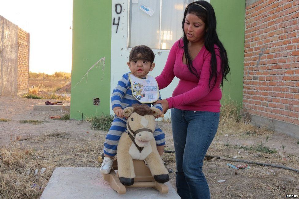 Derian sitting on a toy horse with his mother
