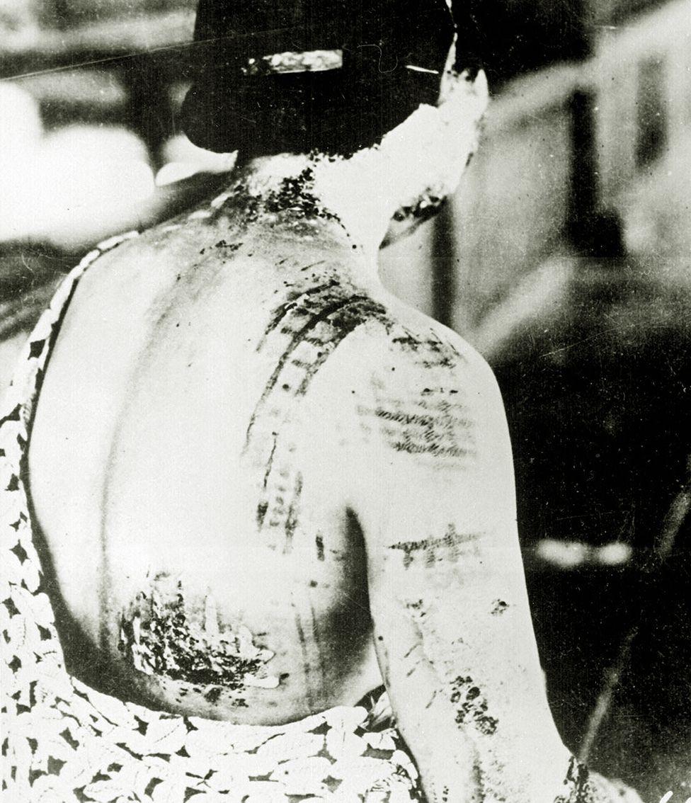 廣島一名女性在原子彈爆炸中受傷,她的皮膚被灼傷