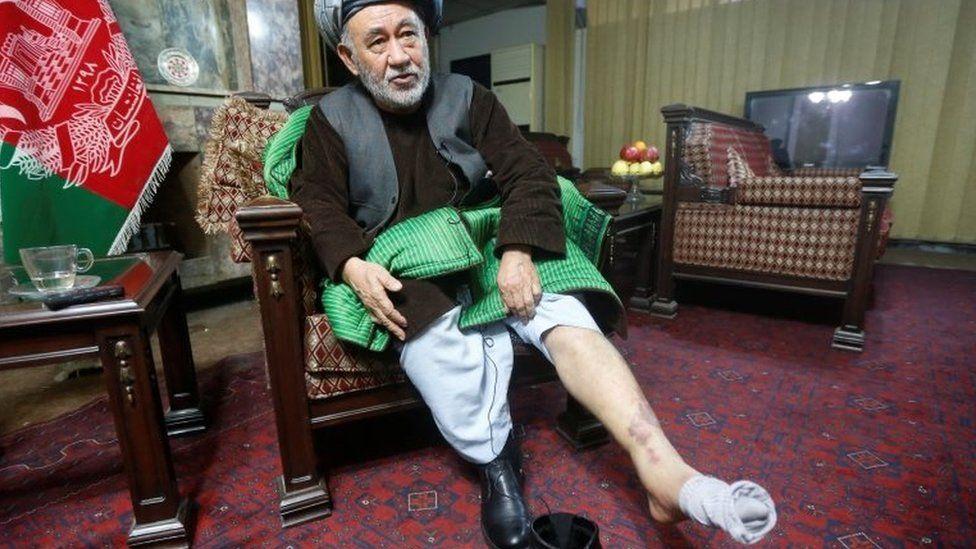Ahmad Eshchi displays an injury of his leg in Kabul, Afghanistan. Photo: 13 December 2016