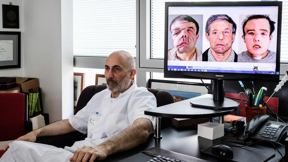 """French medicine professor Laurent Lantieri, a specialist in hand and face transplant, poses next to a screen showing different steps of his patient Jerome Hamon""""s surgery"""
