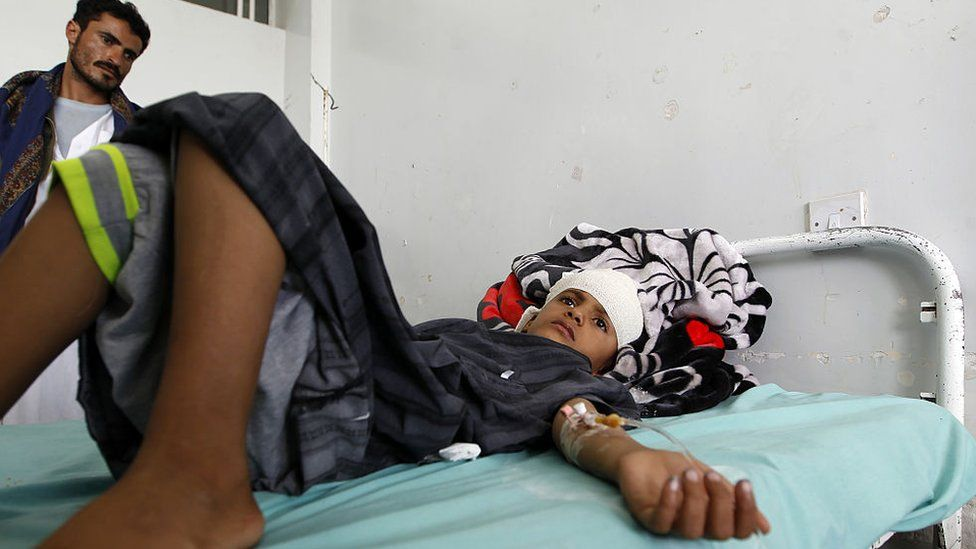 Boy injured in reported Saudi-led coalition air strike on a Koranic school in the Northern Yemeni governorate of Saada, August 2016