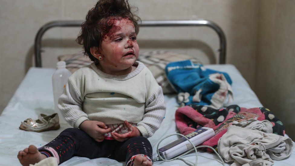 A young girl is treated at a hospital after a bombing in Mesraba, Eastern Ghouta, Syria, 3 January 2018