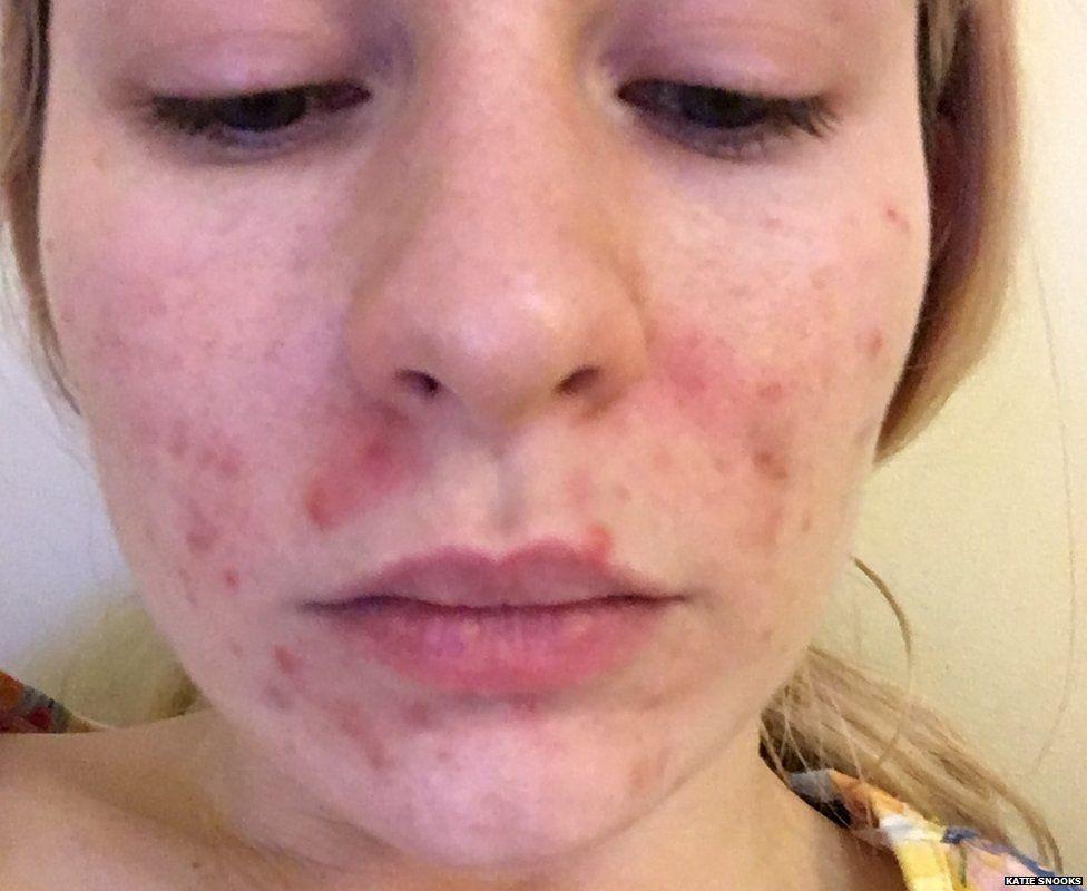 Katie's original acne