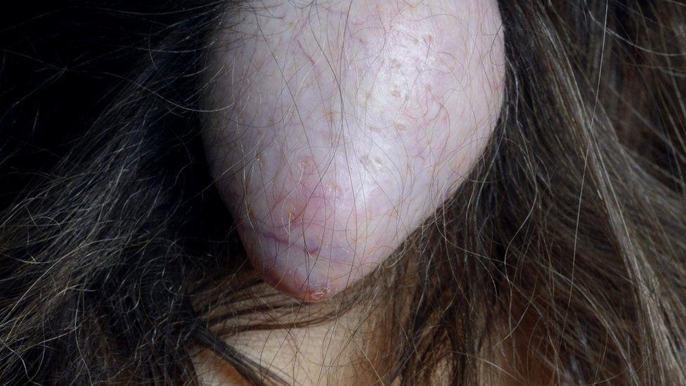 Cyst on scalp