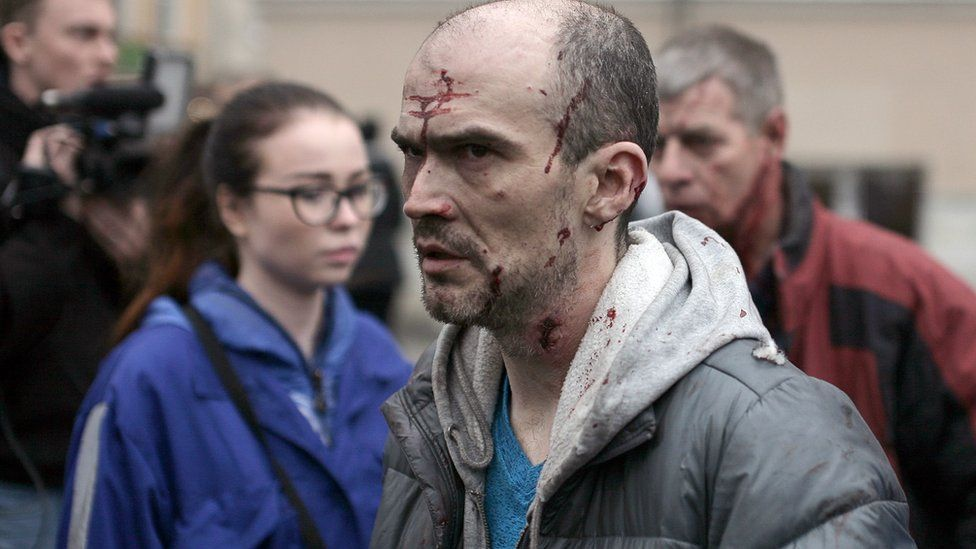 An injured man outside Tekhnologichesky Institut metro station in St Petersburg