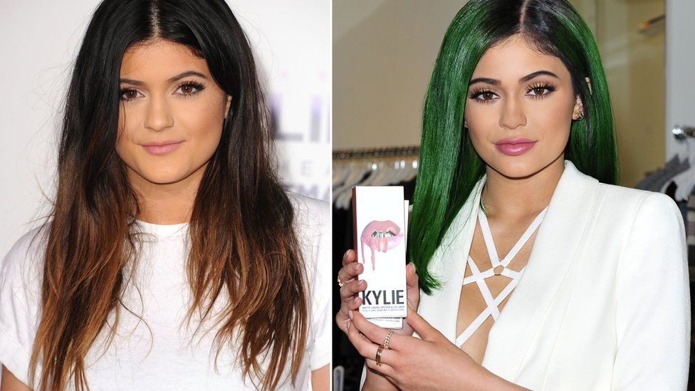Side-by-sie collage showing Kylie Jenner in 2013, and in 2015 with much bigger lips at launch event