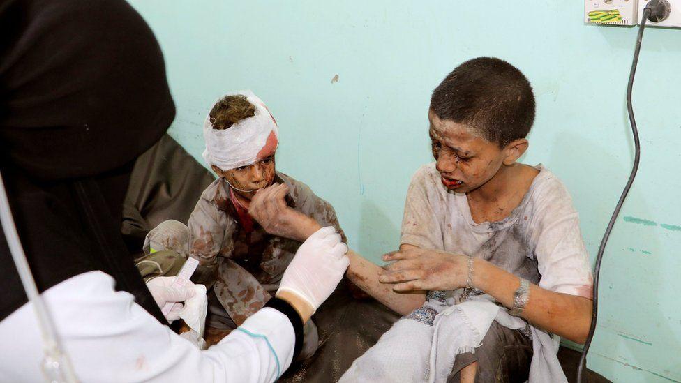 A doctor treats children injured in a Saudi-led coalition air strike in Saada province, Yemen (9 August 2018)