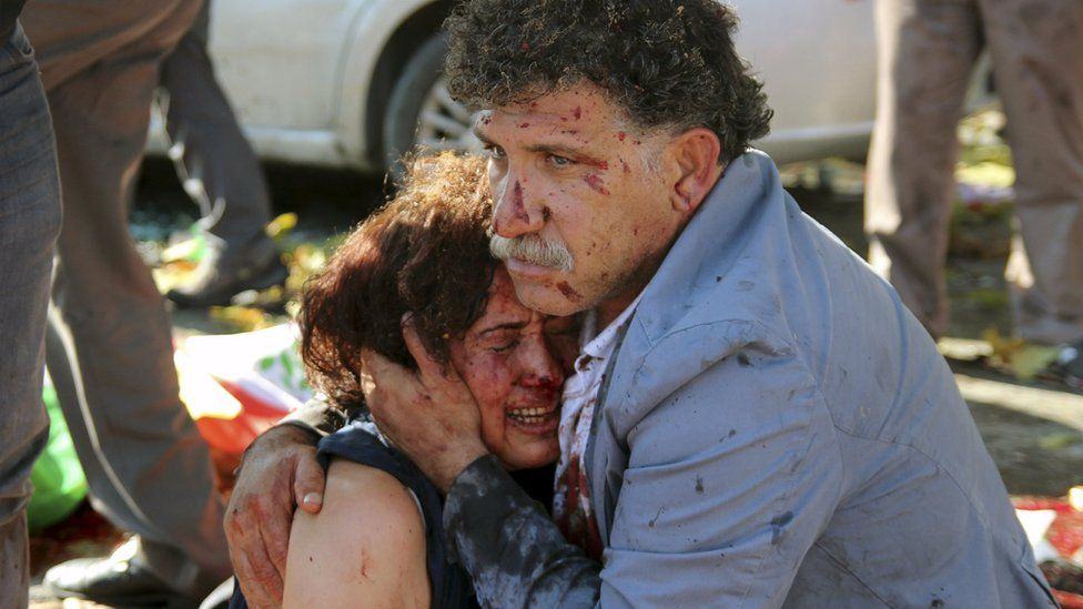 An injured man hugs an injured woman after explosions during a peace march in Ankara, Turkey, October 10, 2015.