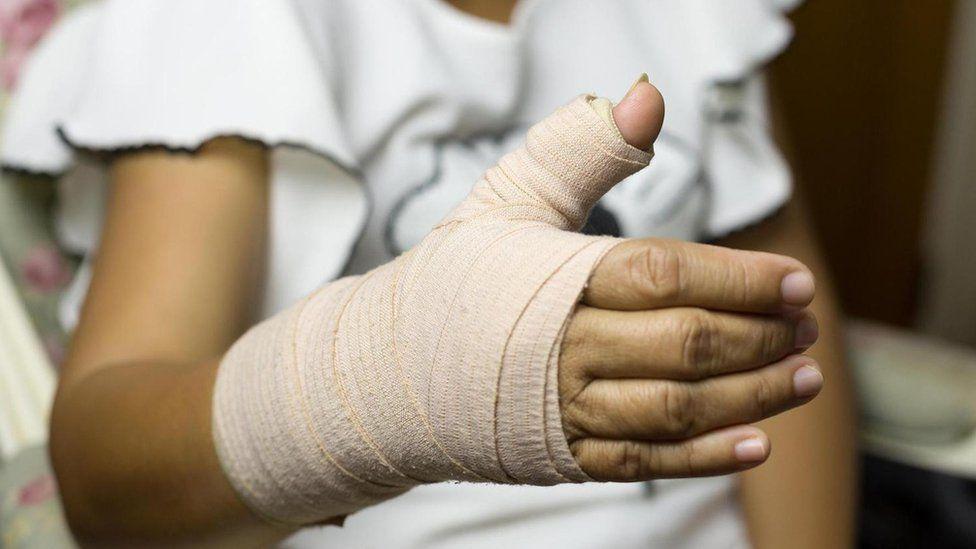 П ять міфів про переломи кісток - BBC News Україна 289e7e80f85c9
