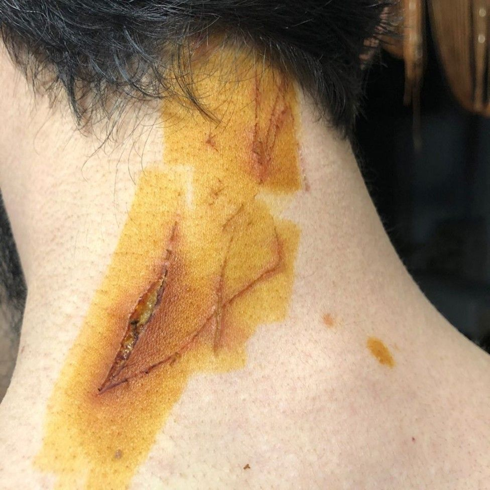 A gash in Tumso Abdurakhmanov's neck, caused by the claws of the hammer
