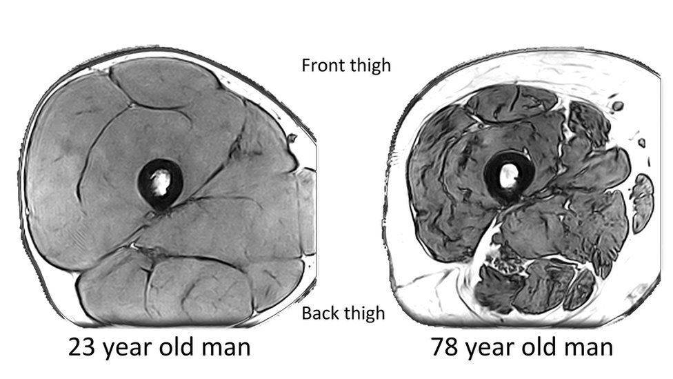 MRI images of the mid-thigh in a 23-year-old man and a 78-year-old