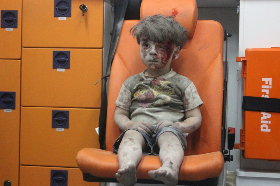 Omran Daqneesh a Syrian boy covered in dust and blood, sits in an ambulance after being rescued from the rubble of a building hit by an air strike in the rebel held Qaterji neighbourhood of the northern Syrian city of Aleppo late on 17 August 2016.