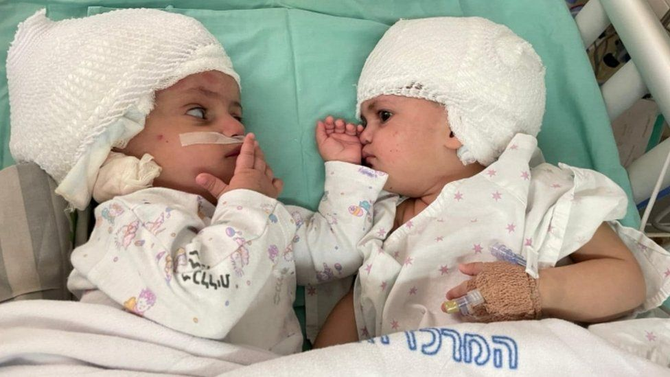 Twins conjoined at head separated after rare surgery in Israel thumbnail