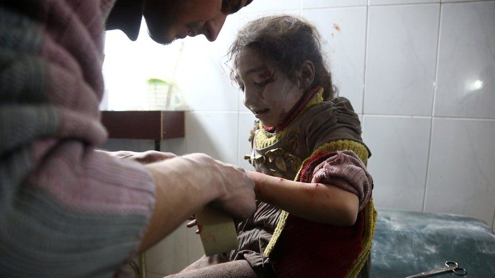 A wounded girl receives treatment following a reported government air strikes on the town of Hamouriya, in the besieged rebel-held Eastern Ghouta (8 February 2018)