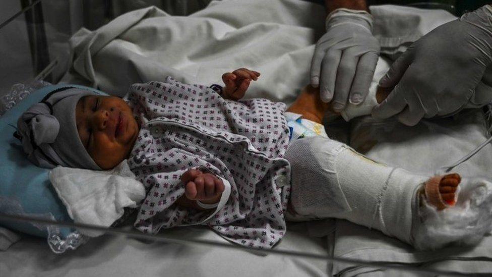 Baby Amina in hospital