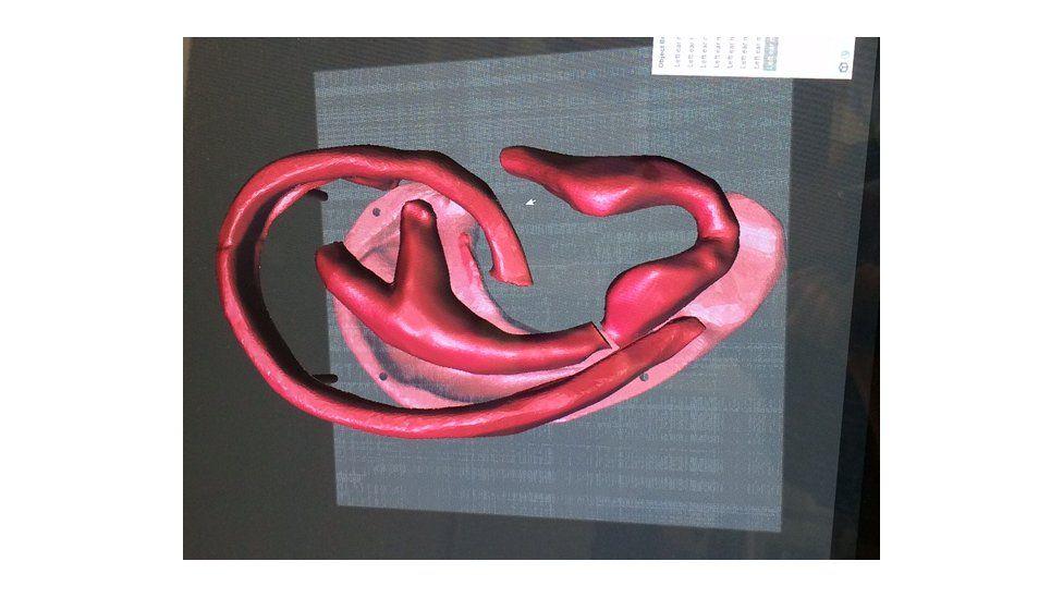 3D model of an ear