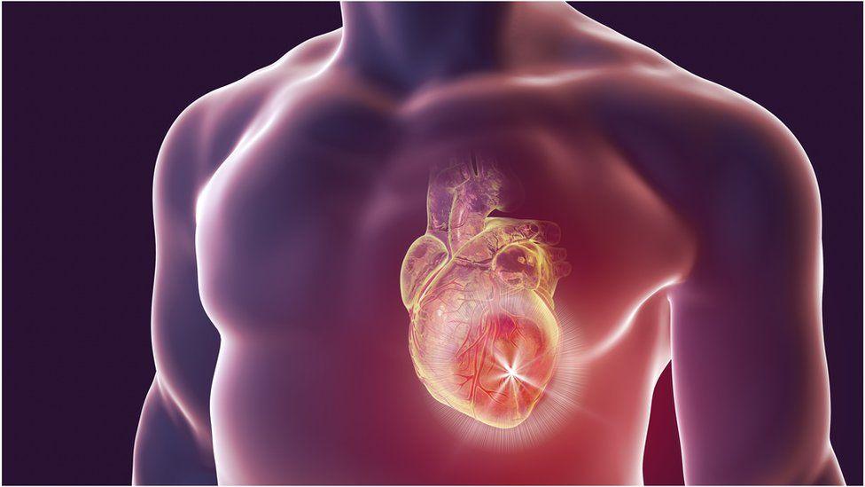 Heart attack illustration