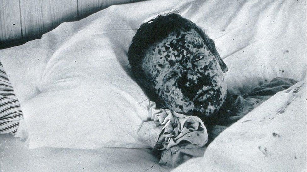 JR Evans 1896 outbreak