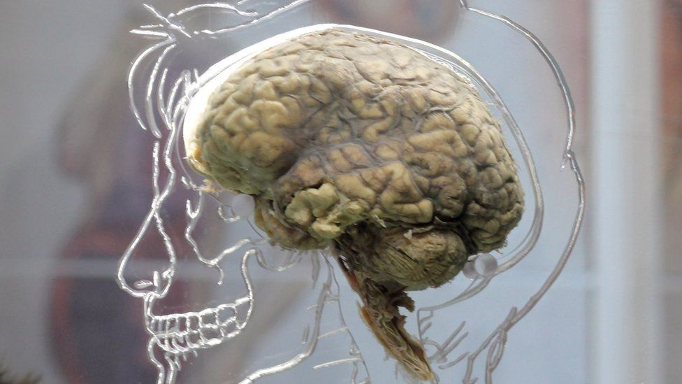 There is no proof that memories can be retrieved from a dead brain