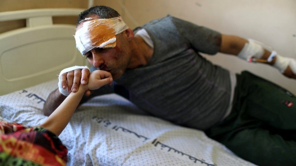 """Riyad Eshkuntana kisses his daughter Suzy""""s hand as they are treated at a hospital after being pulled from the rubble"""