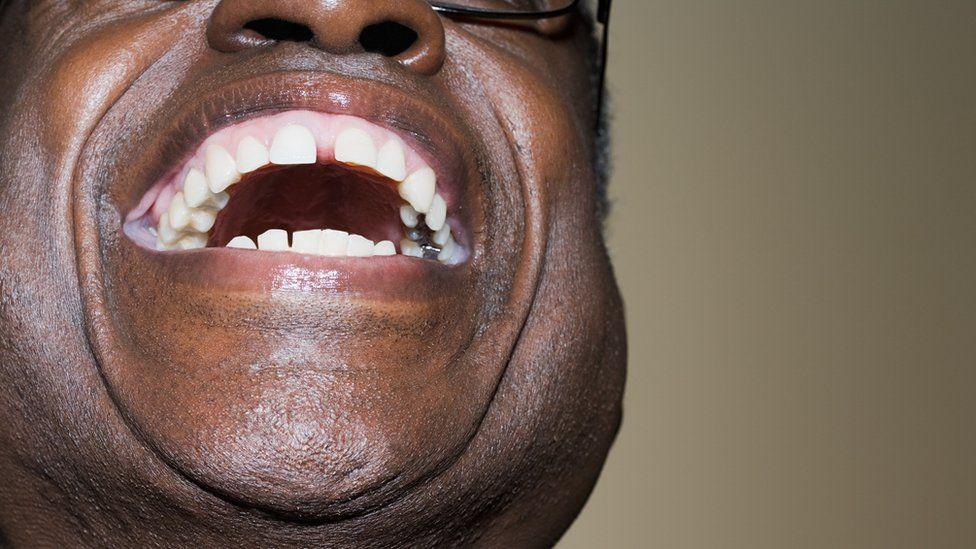 Man laughing