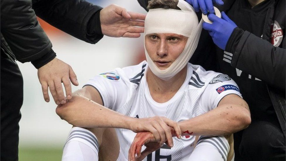 Georgia's Jemal Tabidze is treated by doctors after colliding with Switzerland's Fabian Schaer at a Euro 2020 qualified, 23 March 2019