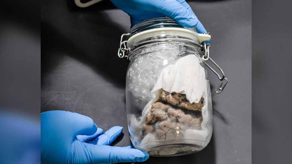 A human brain in a mason jar being held by someone with latex gloves