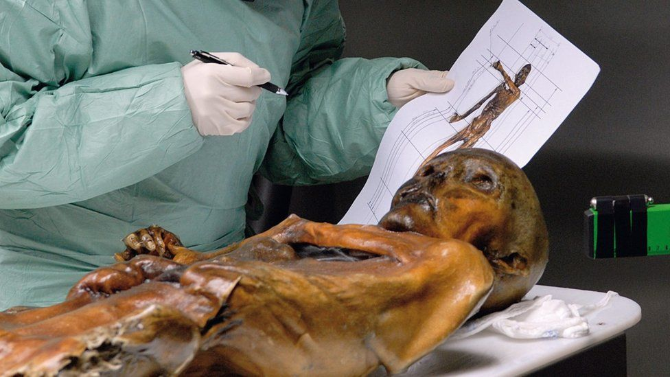 Scientific examination of the frozen mummy