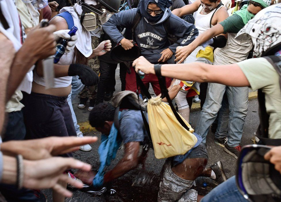 People pour water on to the injured man after the flames were put out