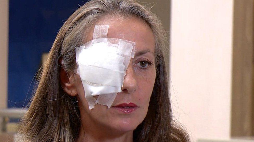 El drama de Corine Remande, la espectadora que perdió la vista en un ojo al recibir un pelotazo en la Copa Ryder