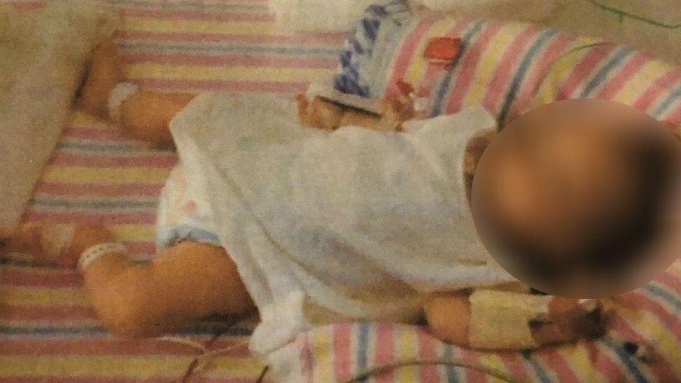 Casal é condenado por desnutrição de bebê com dieta vegana