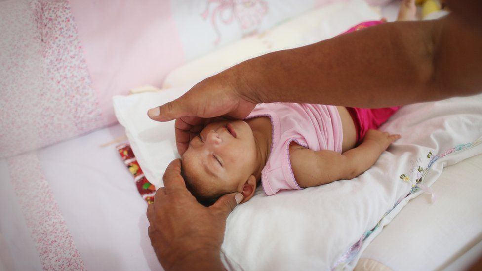 Alice Vitoria Gomes Bezerra, three months old, who has microcephaly, is placed in her crib by her father Joao Batista Bezerra in Recife, Brazil, 27 January