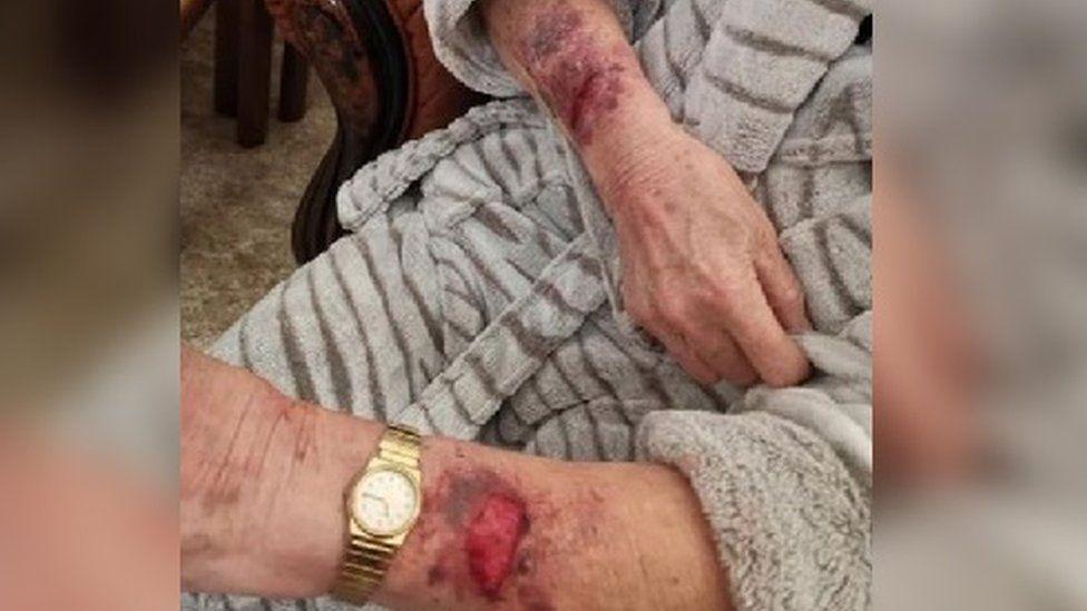 Injured wrists