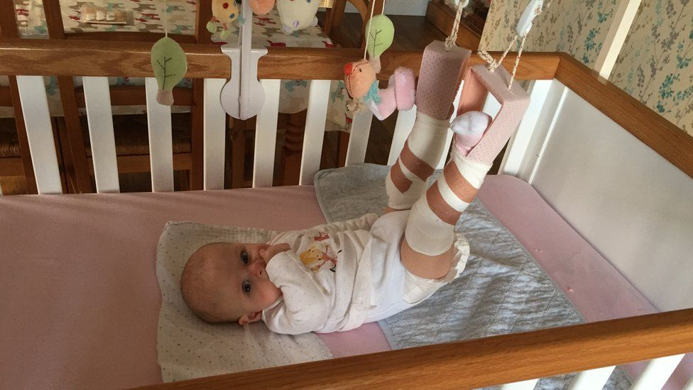 Rowan was in a cast and on a traction to treat her hip dysplasia