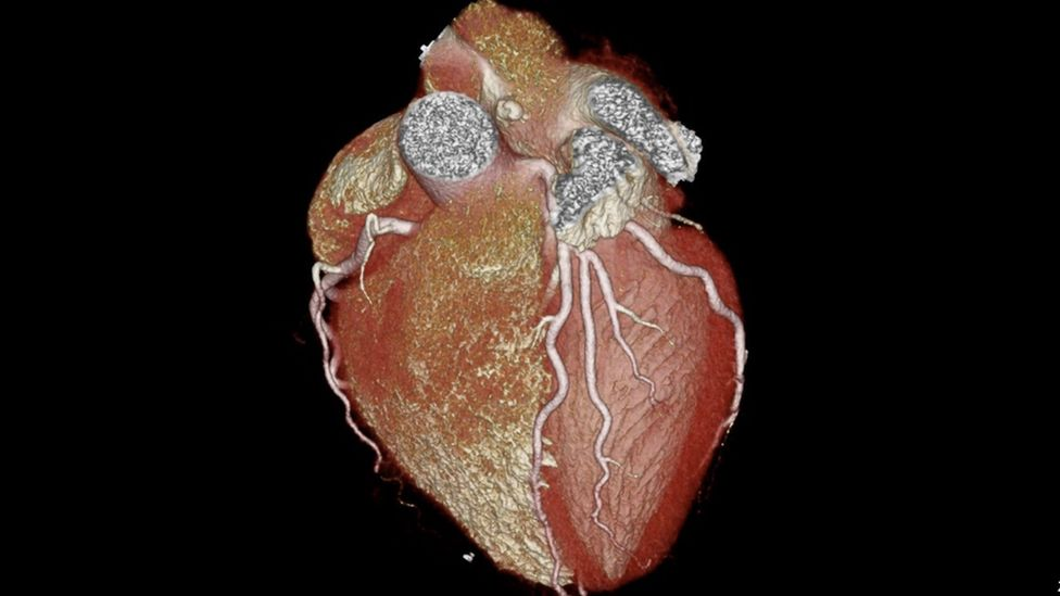 Scan of a heart